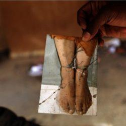 Moussa Biram victim of police beatings